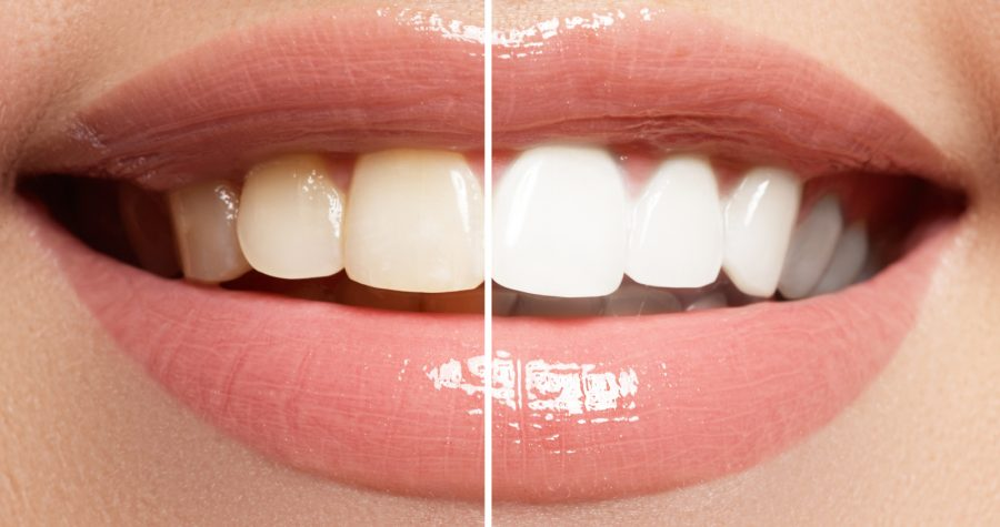 glamsmile cosmetic dentistry